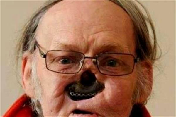 این مرد در صورت خود یک سوراخ عجیب دید+عکس